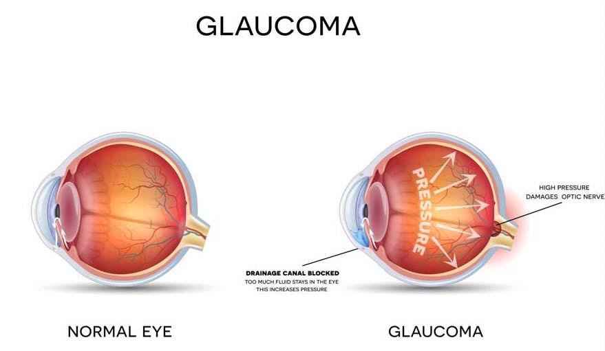 Obat untuk glaukoma