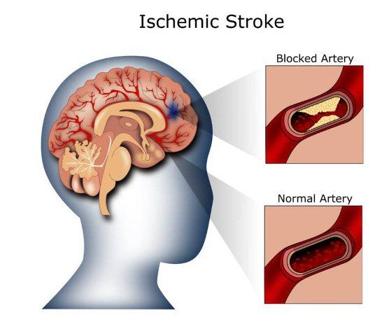 penyebab stroke iskemik