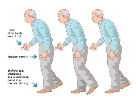 Gejala penyakit Parkinson