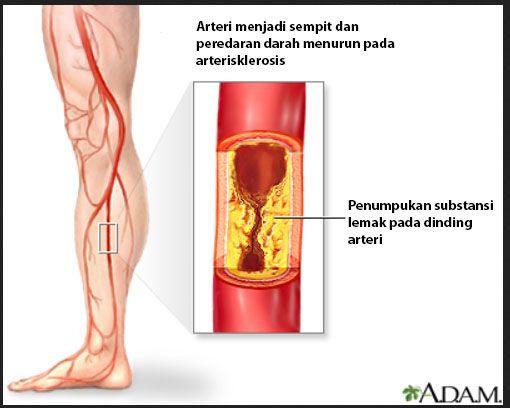 arterisklerosis