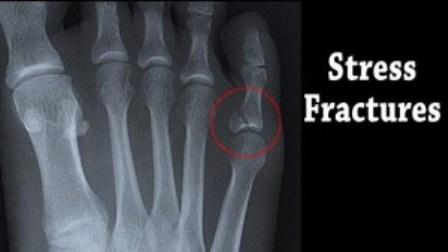 Gambaran Rontgen Patah Tulang karena Tekanan (Stress Fracture)