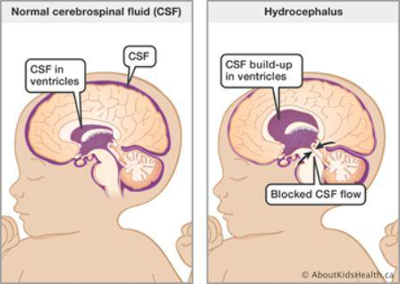Penyebab hidrosefalus