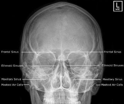 rontgen sinus sinusitis