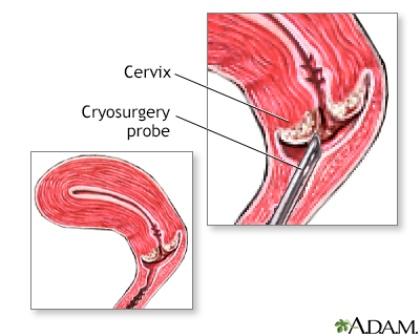 cryosurgery serviks