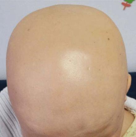 kebotakan atau alopecia