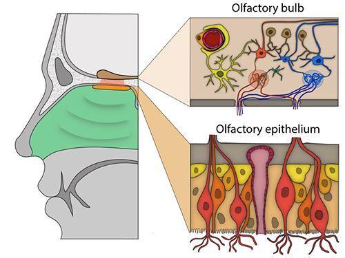 anosmia bukan karena kerusakan saraf penghidu