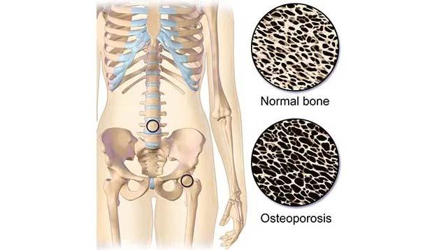 Obat tulang keropos