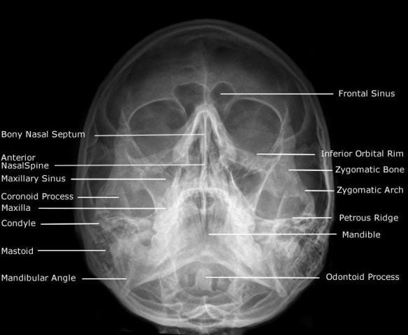 rontgen posisi waters untuk pemeriksaan sakit kepala
