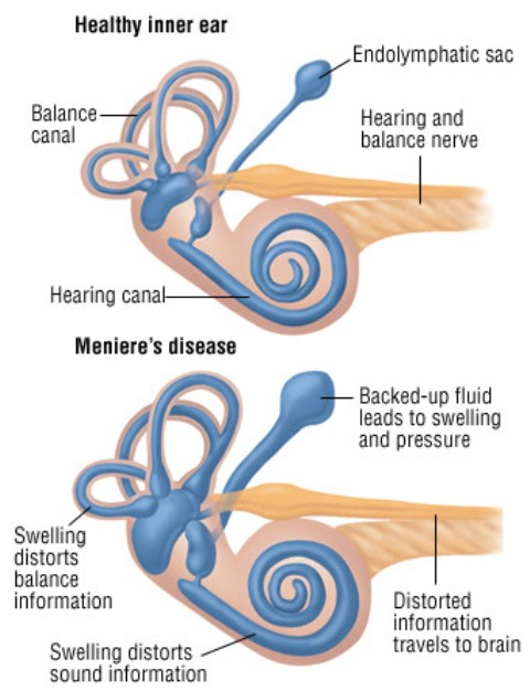 Penyakit Meniere salah satu penyebab vertigo