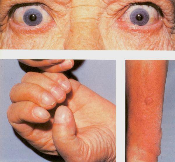 penyakit graves hipertiroid
