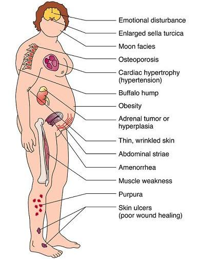 gejala sindroma cushing